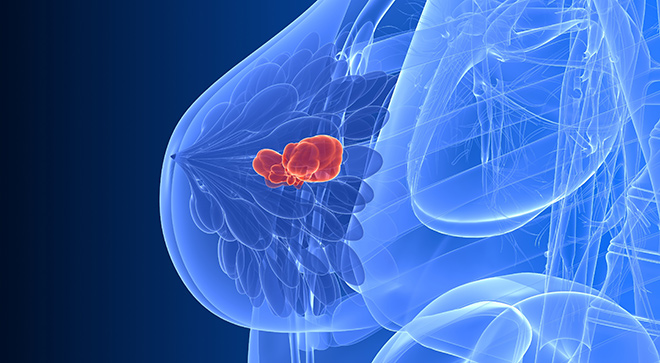 Advances in HER2+ Breast Cancer
