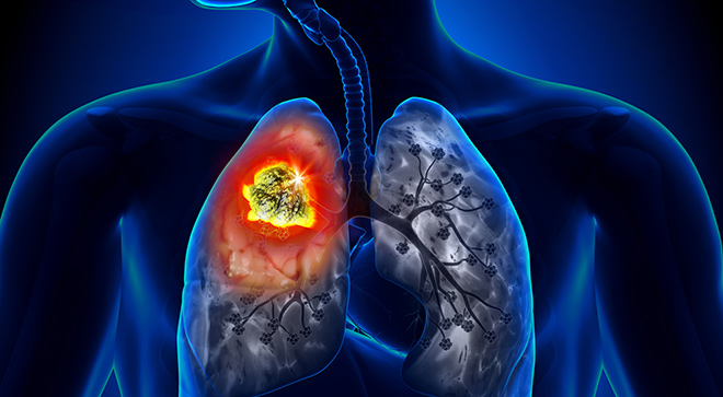 Evolving Treatment in Lung Cancer: What Nurses Should Know