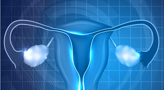 Olaparib Significantly Improves Pfs In Advanced Brca Ovarian Cancer